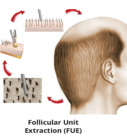 FUE Hair Transplant technique