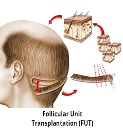 FUT Hair Transplant technique