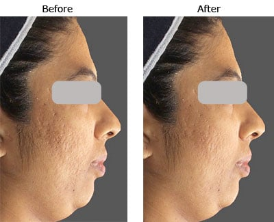 acne scars pre post