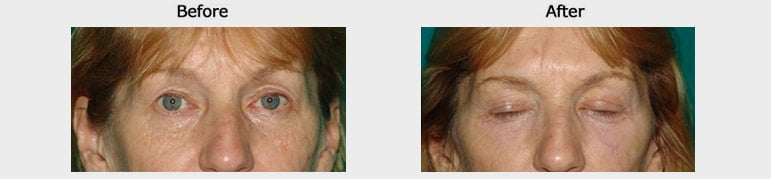 blepheroplasty results
