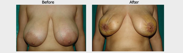 breast reduction case 1