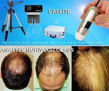 hair analysis photo