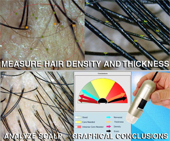 Pandit Clinic Hair Analysis with caslite