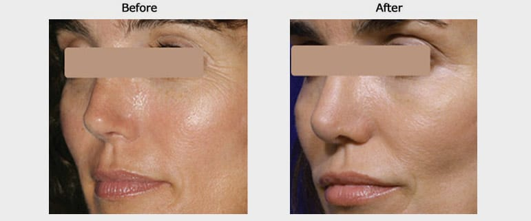 laser skin resurfacing case 1