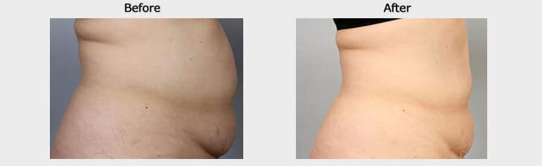 Non invasive fat reduction resultss