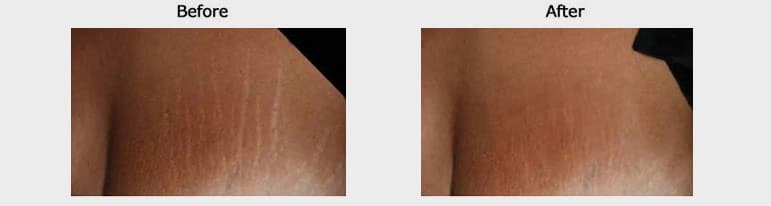 stretch marks results