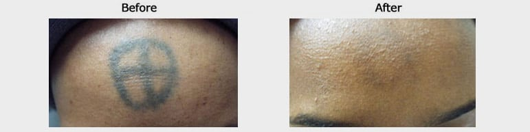 tatoo-removal-before-after