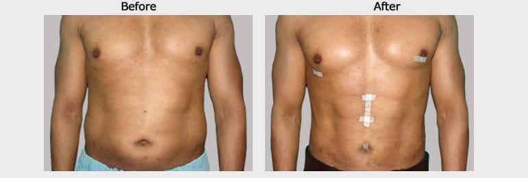 vaser 4d liposuction results