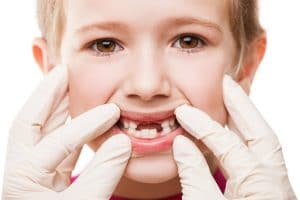 Tooth Decay in kids
