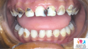 tooth decay in front teeth