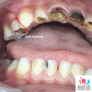 advanced stage teeth cavity and gum swelling