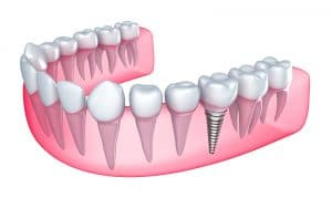 Dental Implants Hero section