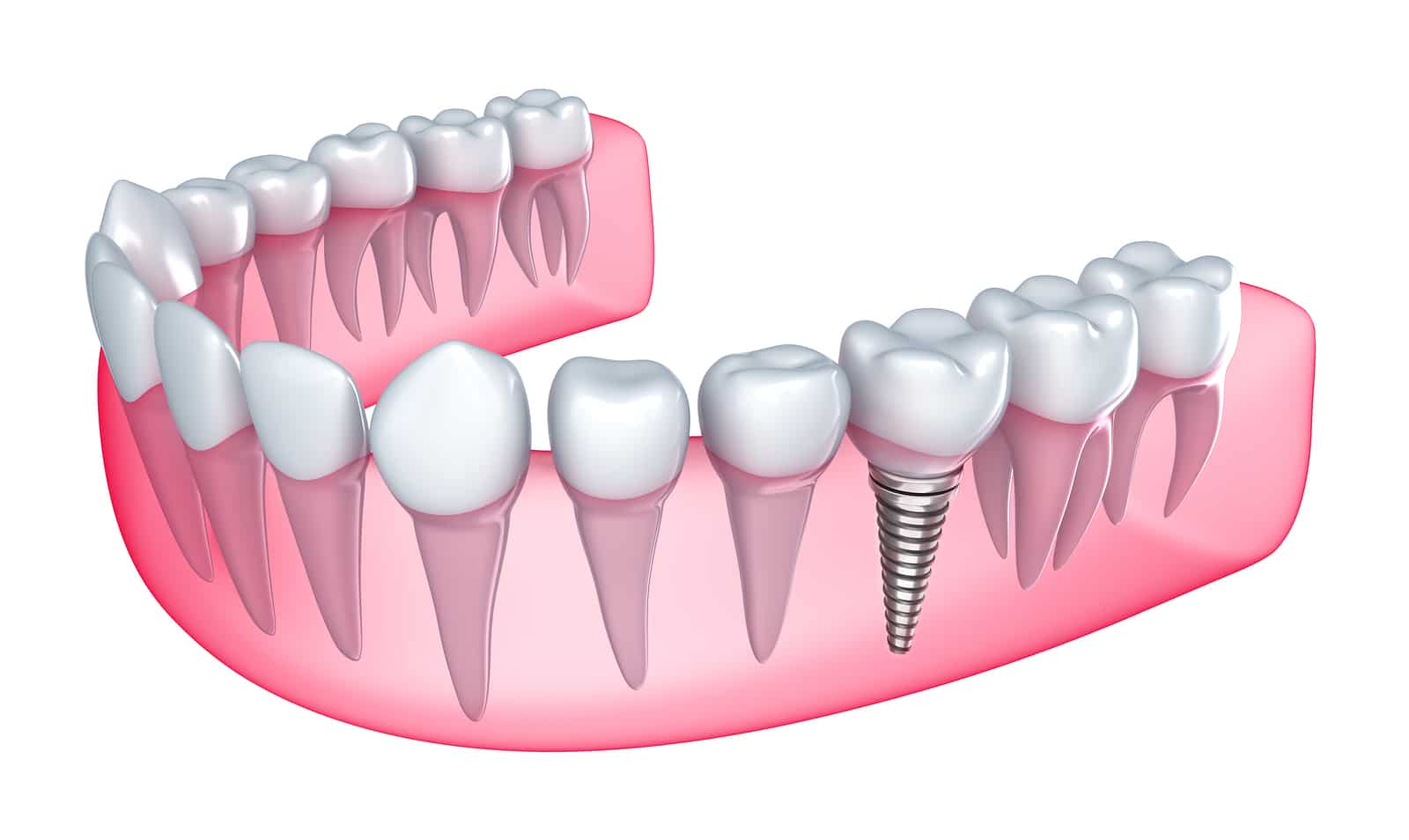 Dental Implants – 9 Reasons To Say YES!