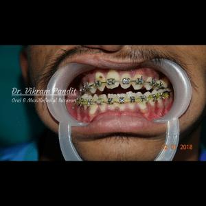Corrective Jaw Surgery Case 2