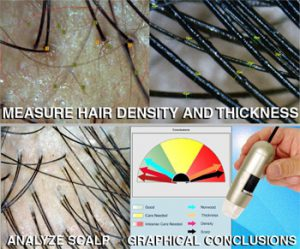 caslite hair analysis