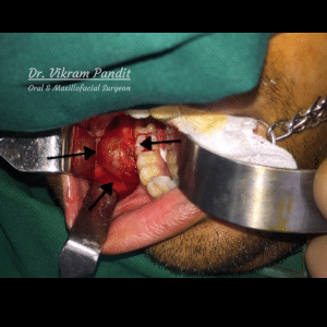 jaw cyst operation image
