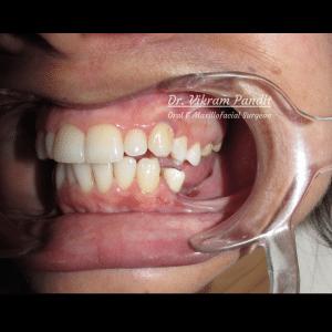 Missing teeth in lower jaw preop