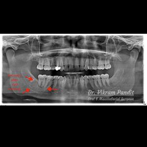 postop cyst removal radiograph
