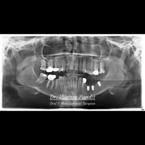 Radiograph showing placement of dental implants