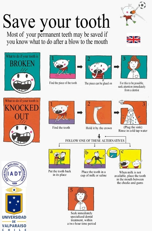 save your tooth English