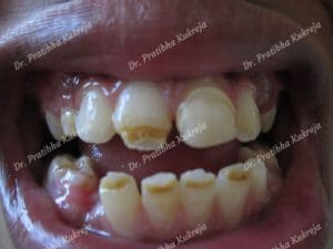 case 1 - composite restorations before