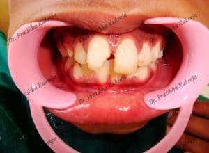 dental avulsion with composite restoration