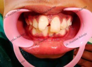 dental avulsion with composite restoration