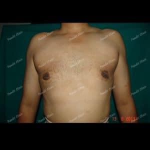 Gynecomastia case 1 after