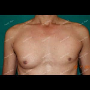 Gynecomastia Case 2 Before