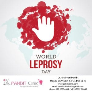 Pandit-Clinic-Leprosy-Day-Option