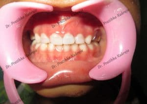 pulpectomy case 2 with strip crowns