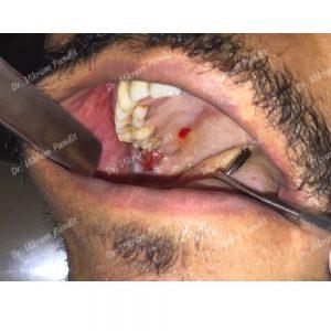 Cheek ulcer 2