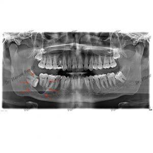 cyst - wisdom tooth