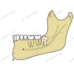 Wisdom tooth - distoangular impaction