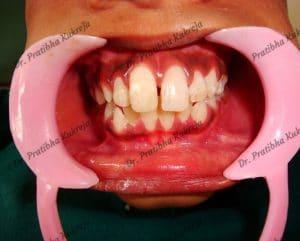 fixed broken tooth