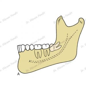 wisdom tooth horizontal impaction
