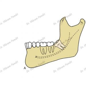 mesioangular impaction