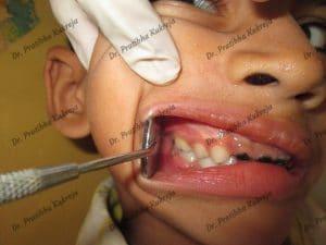 pulpectomy procedure - case 1