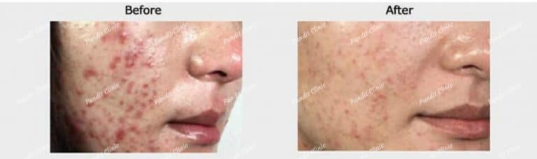 acne and acne scars results