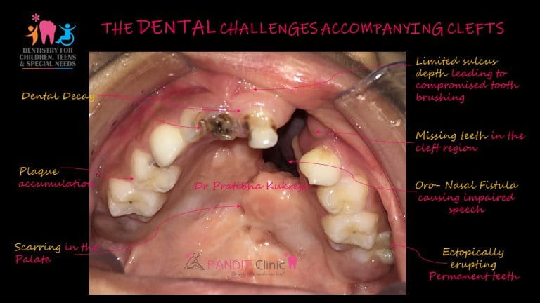Cleft Challenges by Dr. Pratibha Kukreja Pandit