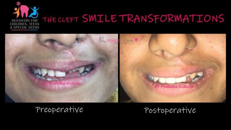 cleft smile by Dr Pratibha Kukreja