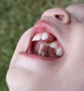 Dental Care For Cleft Lip