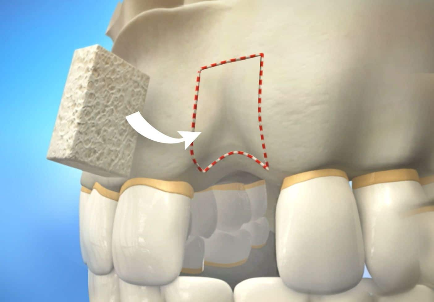 Alveolar Bone Grafting For Cleft Lip And Palate – Detailed Explanation