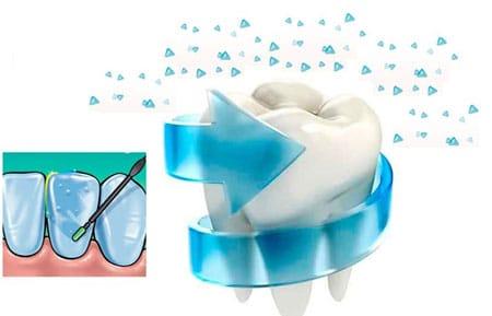 How Fluoride Can Prevent Cavities In Kids