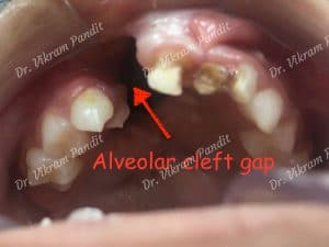 cleft-alveolus-at-young-age