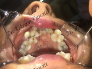 crowded-teeth-in-clusters