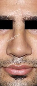 case-1-rhinoplasty-after-pandit-clinic