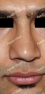 case-1-rhinoplasty-before-pandit-clinic