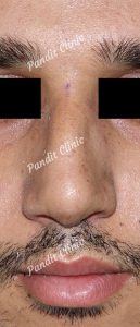 case-3-rhinoplasty-after-front-view-pandit-clinic