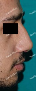 case-3-rhinoplasty-after-pandit-clinic